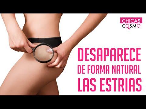 DESAPARECE DE FORMA NATURAL LAS ESTRIAS