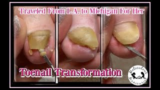 👣 Pedicure Tutorial: Satisfying Toenail Transformation 👣