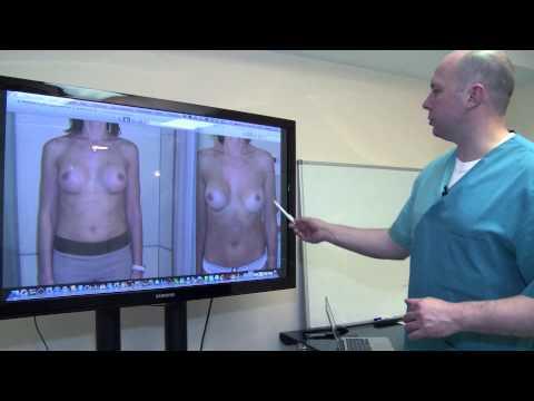 Увеличение груди. Капсулярная контрактура.