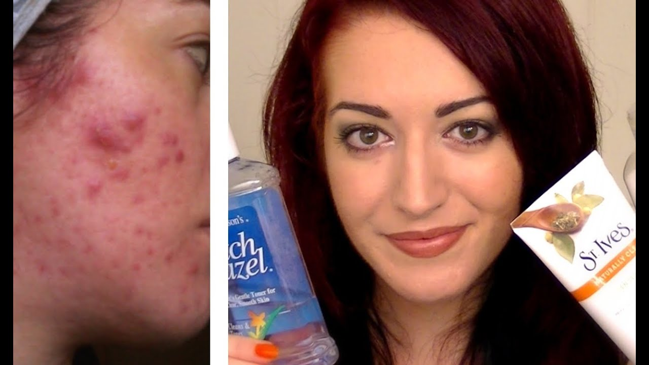 Best Cheap Skin Care Products