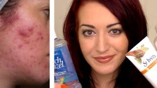 UPDATED! MY FAVORITE DRUGSTORE ACNE PRODUCTS! Simple, Cheap Skin Care & Acne Treatments! AQA#2