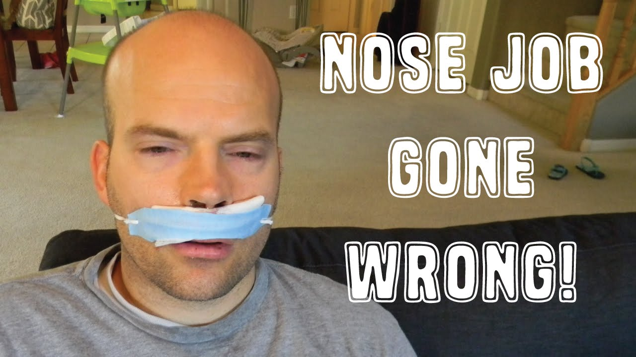 Jennifer Grey Nose Job Gone Wrong March 14, 2019 ...