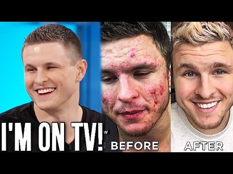 My Acne Story On National TV! (THE DOCTORS - OFFICIAL VIDEO)