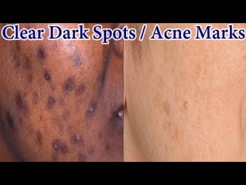 how to get rid of dark spots on body fast