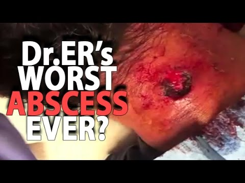 Dr. ER's Worst Infected Cyst Ever?  Pimples, Zits & Surgery!