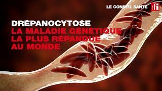 Conseil Santé : l'anémie est le premier signe de la drépanocytose