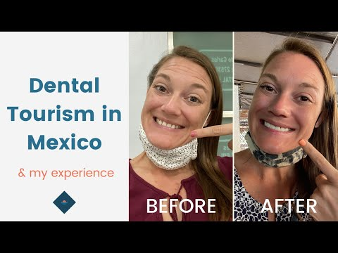 Getting Dental Work Done in Mexico   Dental Tourism Tips