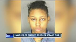 Mother of burned toddler speaks out
