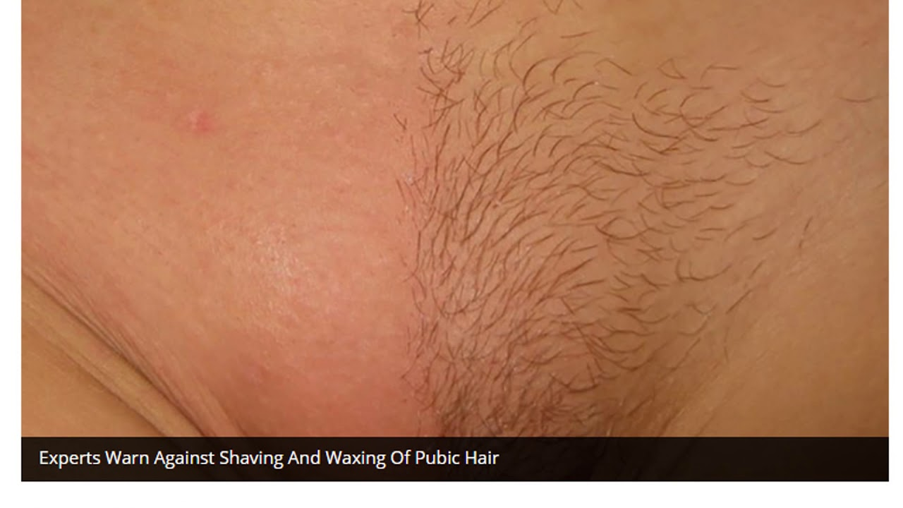 Pictures of shaved genetalia