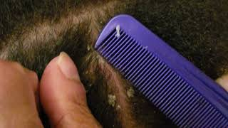Dandruff Scratching | Nape Dandruff Removal With Comb