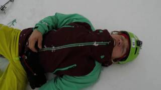 Broken collarbone on skis