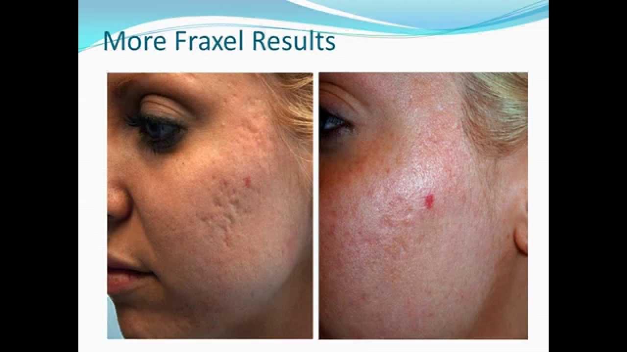 Photo facial for acne scars