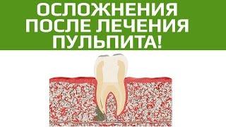 Осложнения после лечении пульпита. Плохо пролечены каналы зуба(, 2017-04-14T15:20:22.000Z)