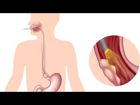 Симптомы рака пищевода: первые признаки рака пищевода