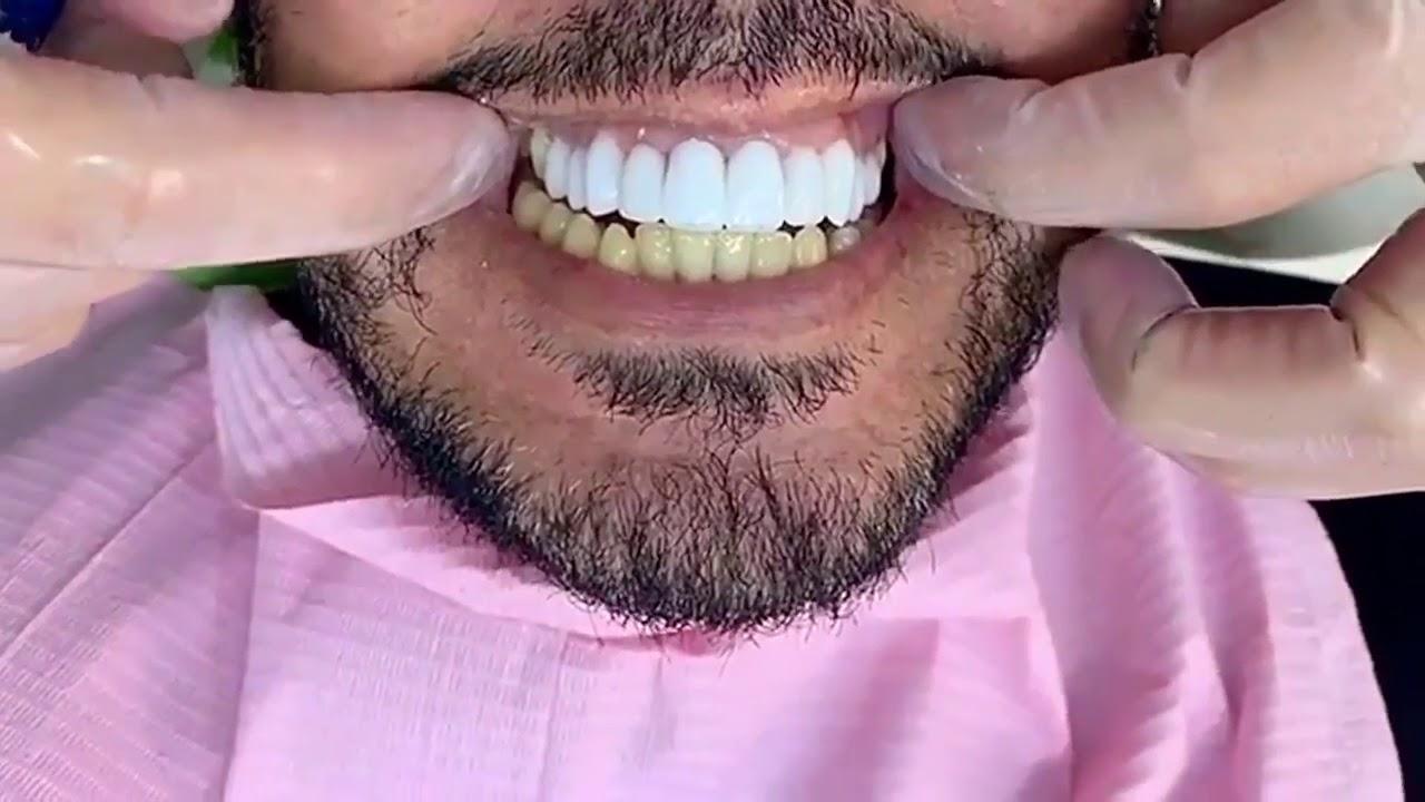 بدون برد الاسنان اللومينير Lumineers Teeth Youtube