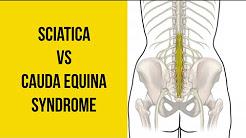 Sciatica vs Cauda Equina Syndrome (MEDICAL EMERGENCY!)