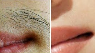 How to Remove Unwanted Hair Permanently at Home Naturally | Up…