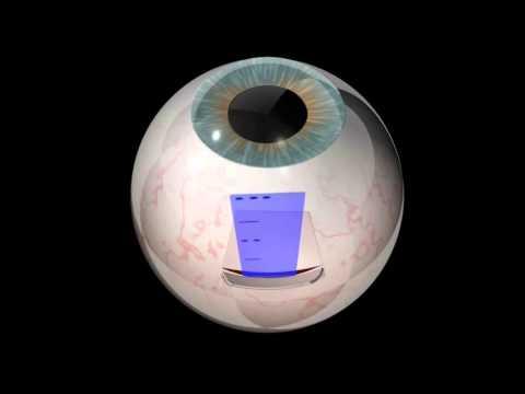 Retinal implant trial at John Radcliffe Hospital, Oxford