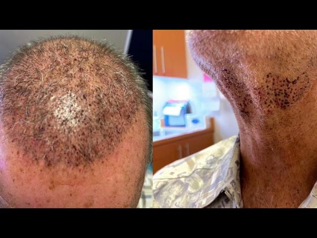 Dallas Corrective Hair Transplant Testimonial