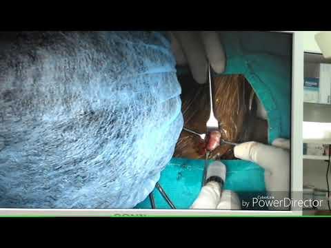 Emergency tracheotomy