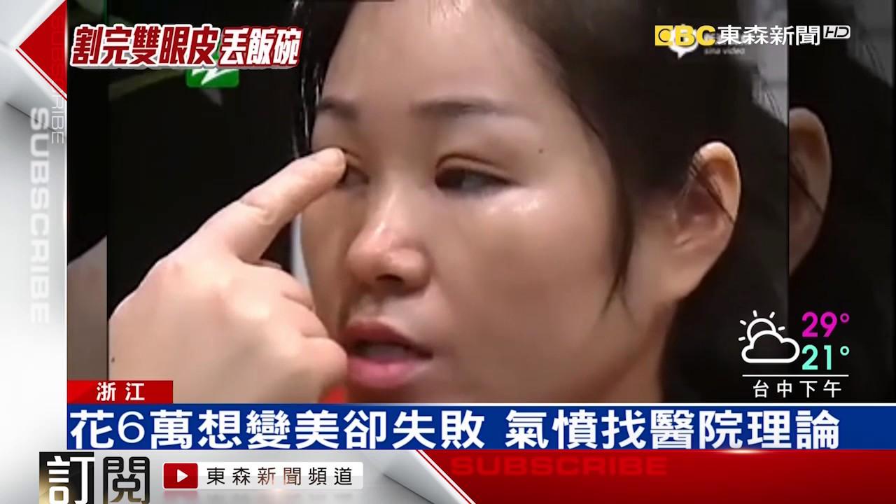 慘!割雙眼皮失敗 嚇到客人丟工作 - YouTube