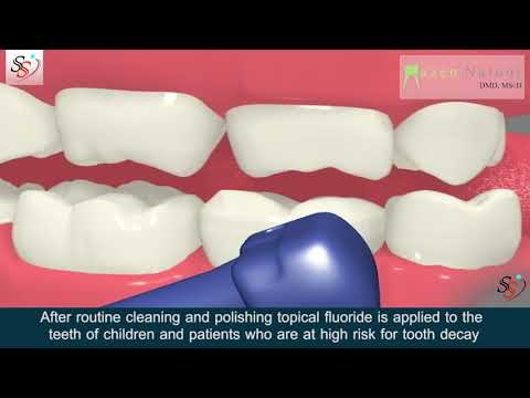 Fluoride Treatment - Dr. Mazen Natour DMD - Manhattan New York