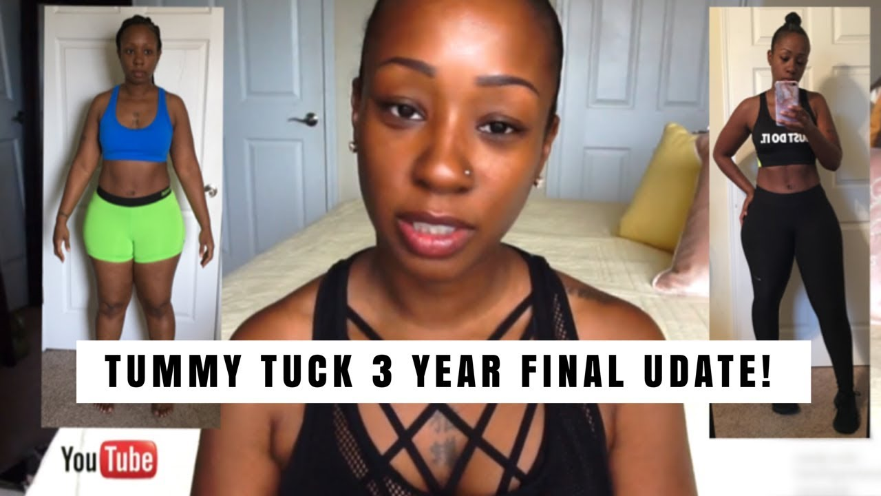 TUMMY TUCK 3 YEAR FINAL UPDATE /fitness/weight gain/loss/PICS! 6 29 18