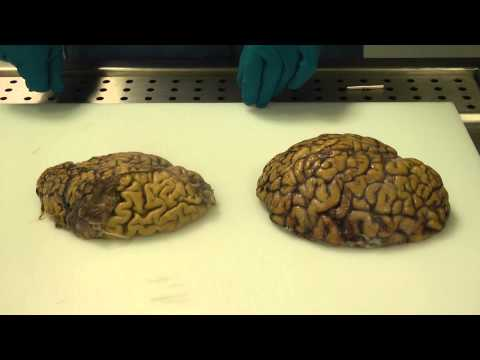 Alzheimer's brain dissection