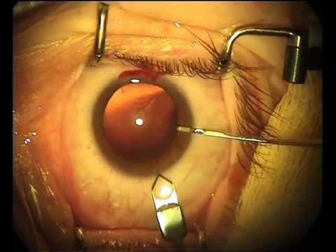 Незрелая катаракта глаза - лечение без операции и