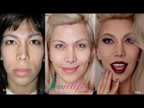 facial-feminization-surgery-before-and-after-procedures