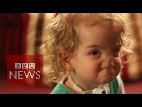 3D printer to help build girl's nose - BBC News