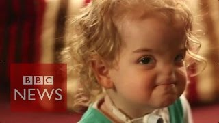 3D printer to help build girl's nose - BBC News