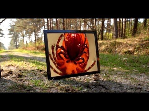 Maladie de Lyme : épidémie ou psychose ? - Enquête de santé le documentaire