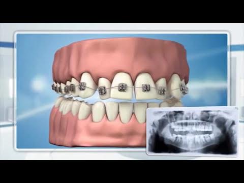 Межчелюстные тяги купить и использовать необходимо в случаях, когда требуется восстановить природно верное соотношение верхней челюсти к.