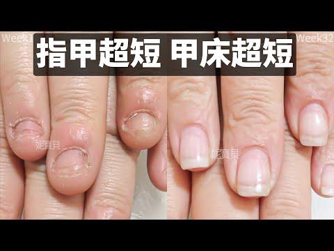 指甲短 甲床短|基隆指甲矯正案例|工作嚴重破壞的手指|水晶指甲處理甲床外露|凝膠指甲調整甲型