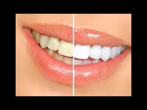 Банановая кожура и отбеливание зубов