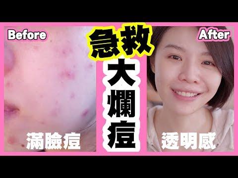 【抗痘成功!】急救篇!生理痘、紅腫大爛痘快速消除!黃連有用嗎?