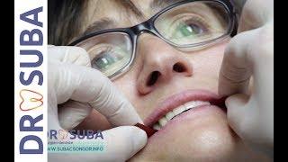 Prothèse fixe sur implant Refaire toutes ses dents Le travail du dentiste