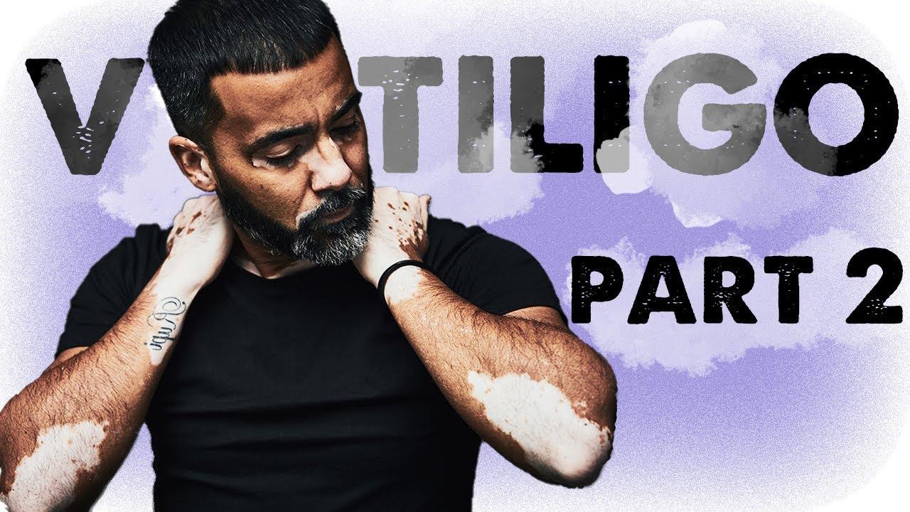 A Patchy Indian - A Vitiligo Story