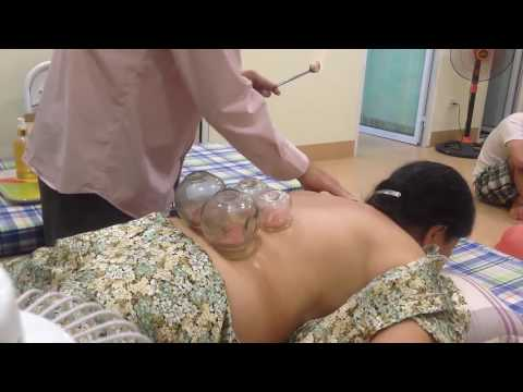 Acupuncture, acupressure and cupping cure back pain