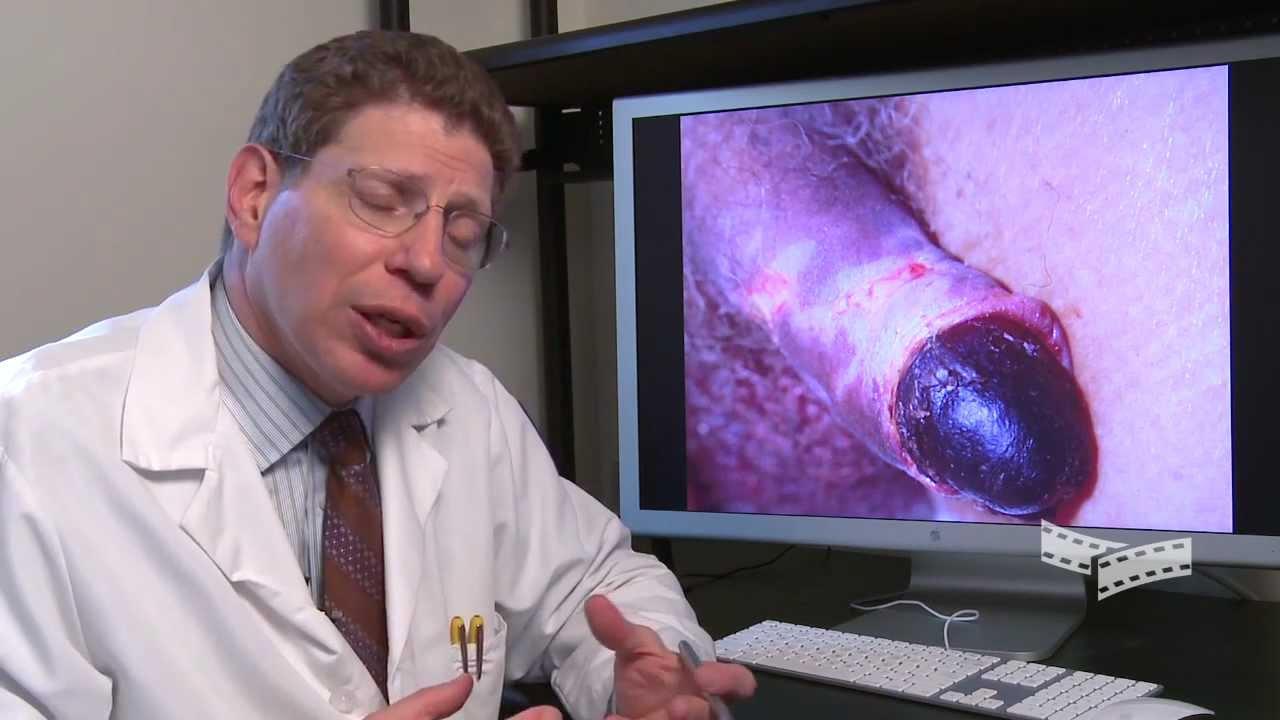 Extreme Diagnosis Penile Gangrene YouTube