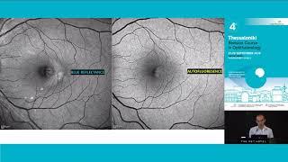 Macular causa telangiectasia