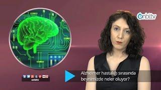 Alzheimer hastalığı sırasında beynimizde neler oluyor?