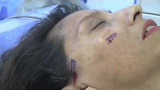 face scar,Dr Steven Burres, skin graft, dr beauty