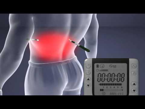 Alpha-Stim M, traitement de la douleur par micro-courant (MET) et electrothérapie crânienne (CES)