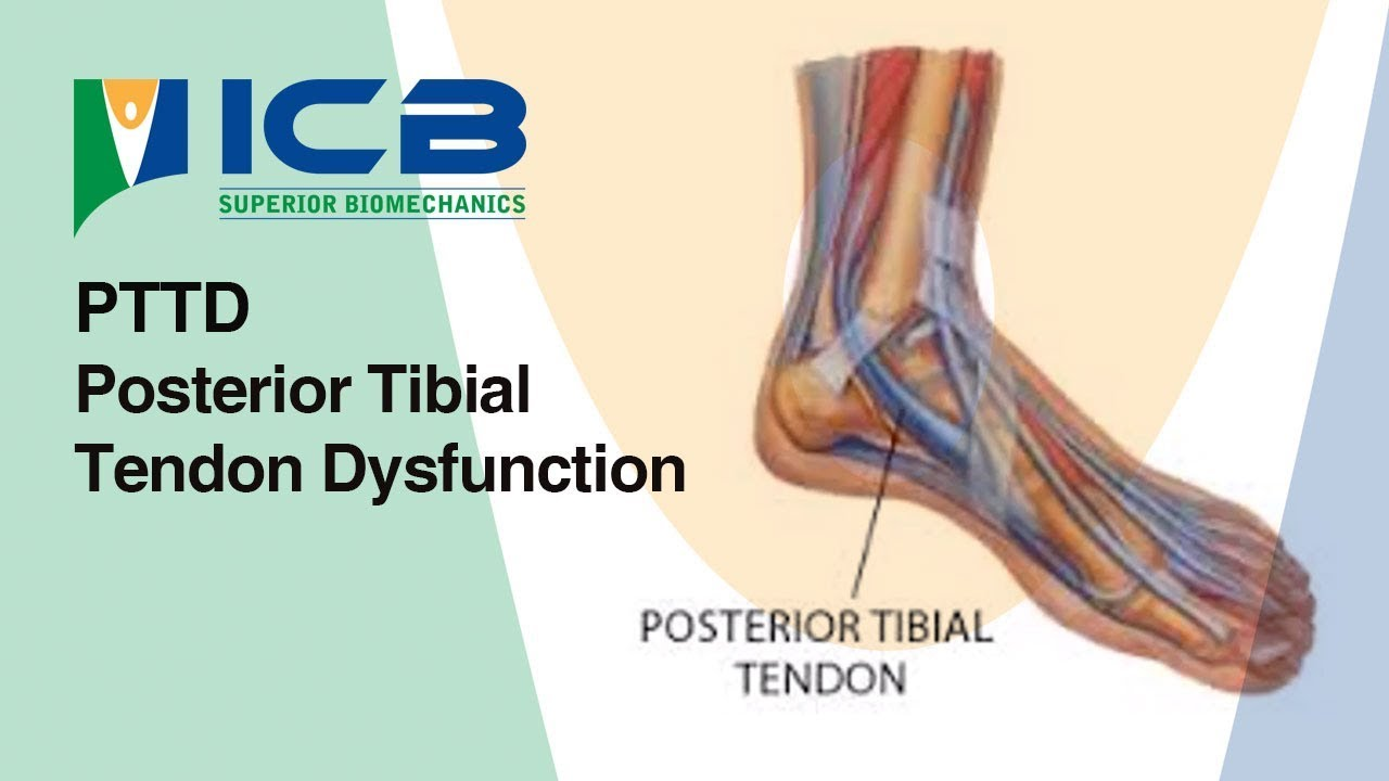 PTTD - Posterior Tibial Tendon Dysfunction | DLT Chiropody