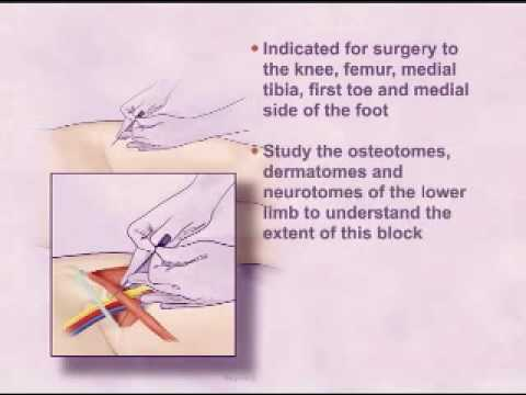 single injection femoral nerve block - youtube, Muscles