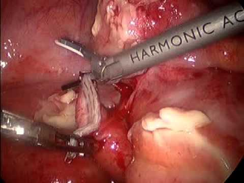 Laparoscopic Appendectomy, appendiceal rupture/peritonitis ...
