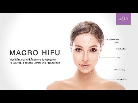 Macro HIFU the non-surgery face lifting with no downtime