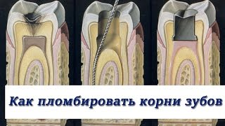 видео Пломбировочные материалы для корневых каналов зубов